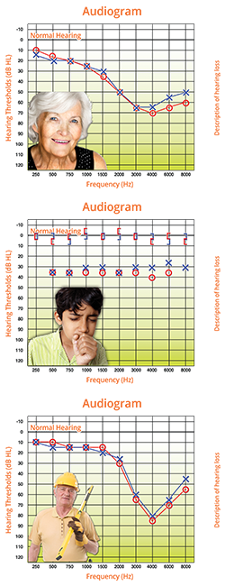 Understanding an Audiogram - common audiograms - Understanding an Audiogram - Understanding an Audiogram